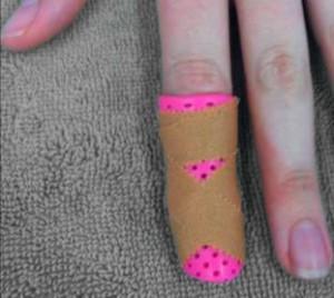 small-thermoplastic-splint