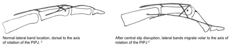 Central Slip Injury
