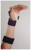 Dorsal-Blocking-Orthosis
