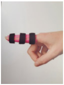 Finger-Extension-Orthosis