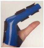 Hand-Based-Ulnar-Gutter-Orthosis