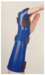Ulnar-Gutter-Orthosis